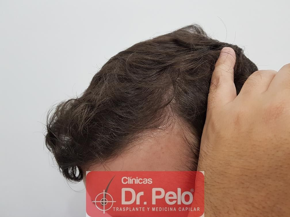 [Imagen: tratamiento-capilar-en-dr-pelo-27.jpg]