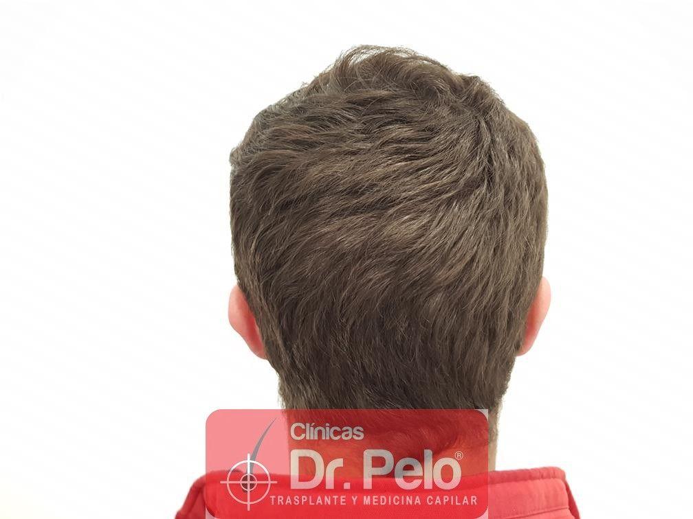 [Imagen: tratamiento-capilar-en-dr-pelo-28.jpg]