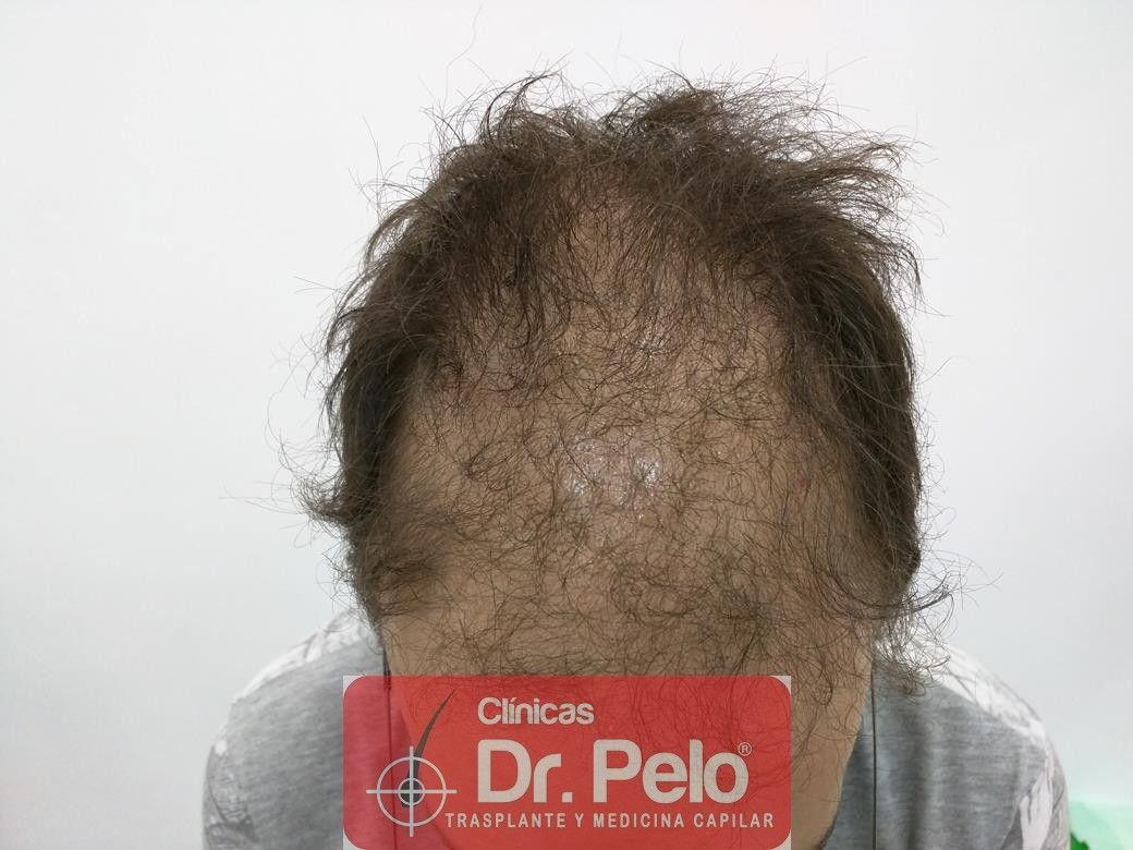 [Imagen: tratamiento-capilar-en-dr-pelo-3.jpg]