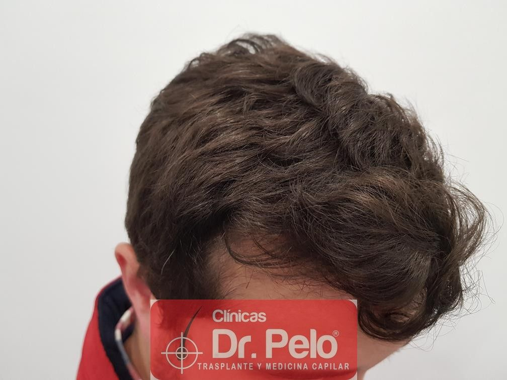 [Imagen: tratamiento-capilar-en-dr-pelo-30.jpg]