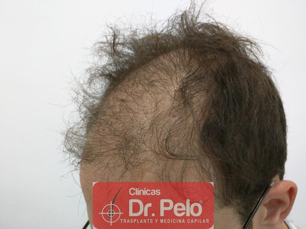 [Imagen: tratamiento-capilar-en-dr-pelo-4.jpg]