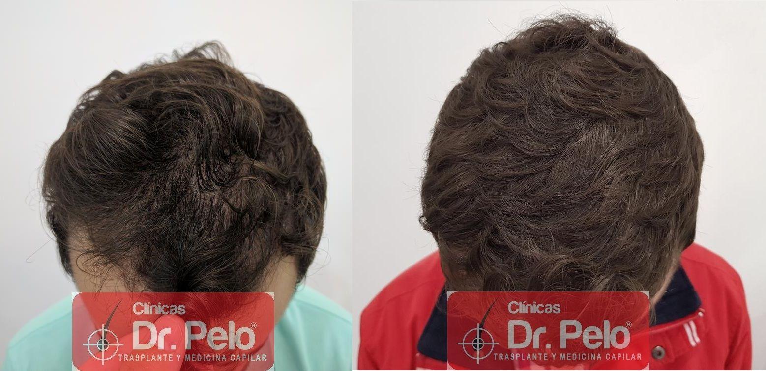 [Imagen: tratamiento-capilar-en-dr-pelo-40.jpg]