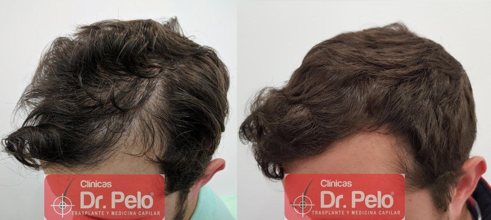 [Imagen: tratamiento-capilar-en-dr-pelo-41.jpg]