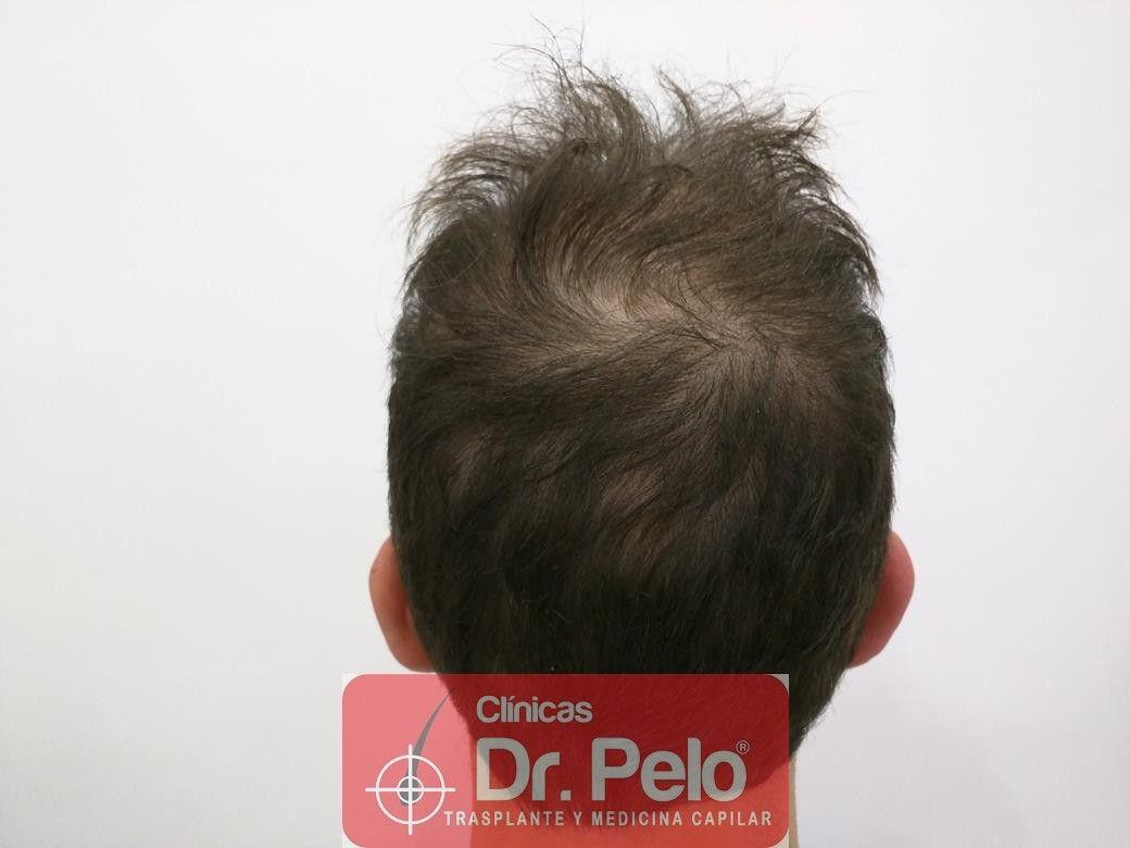 [Imagen: tratamiento-capilar-en-dr-pelo-5.jpg]