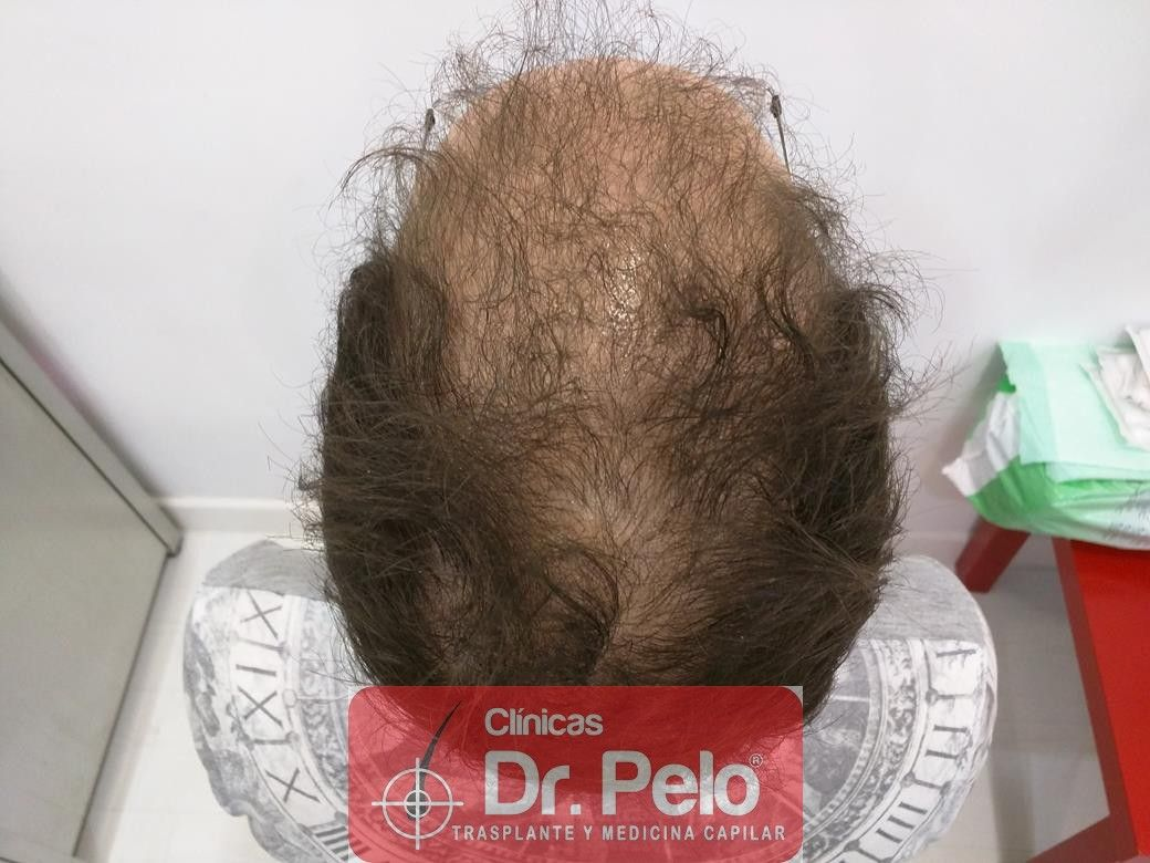 [Imagen: tratamiento-capilar-en-dr-pelo-6.jpg]