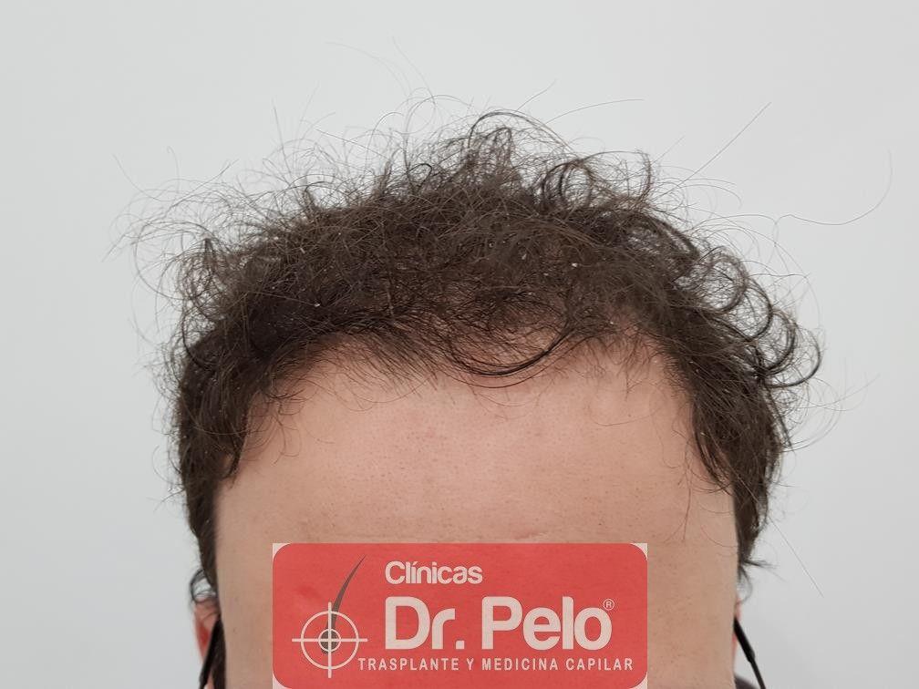 [Imagen: tratamiento-capilar-en-dr-pelo-8.jpg]