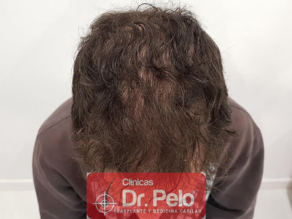 [Imagen: tratamiento-capilar-en-dr-pelo-9.jpg]