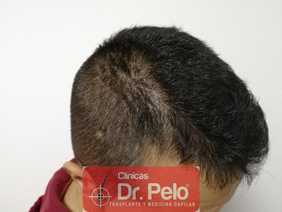 [Imagen: tratamiento-capilar-fue-en-dr-pelo-11-1.jpg]