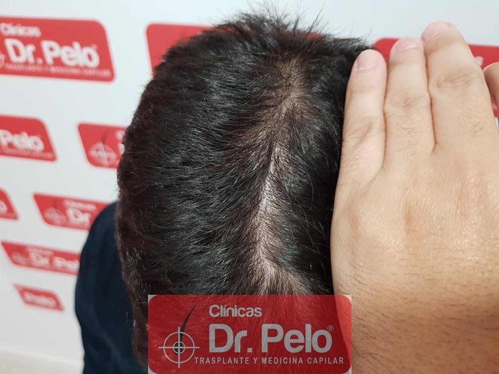 [Imagen: tratamiento-capilar-fue-en-dr-pelo-15-1.jpg]
