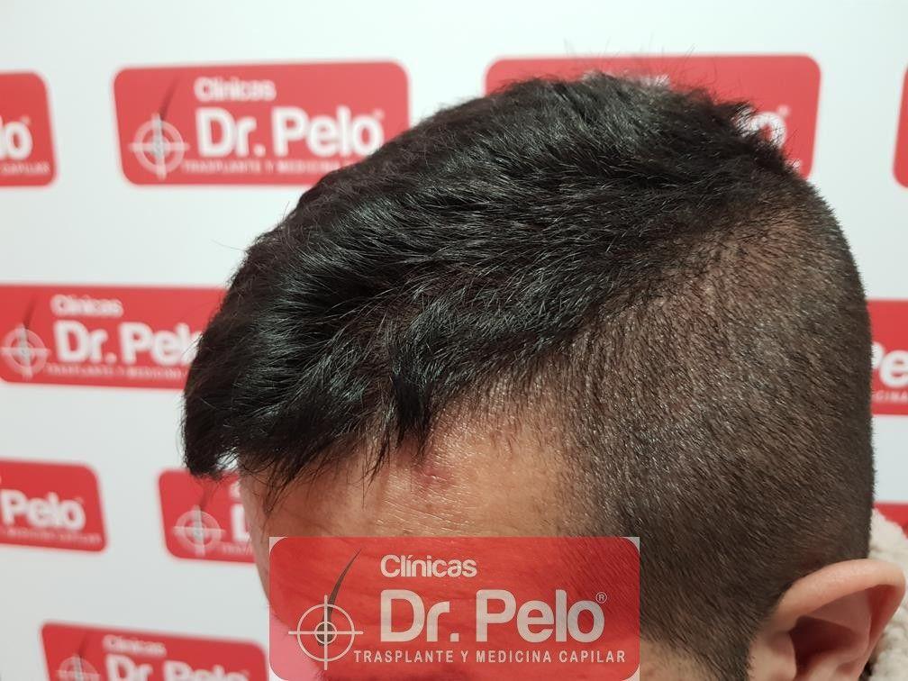[Imagen: tratamiento-capilar-fue-en-dr-pelo-16.jpg]