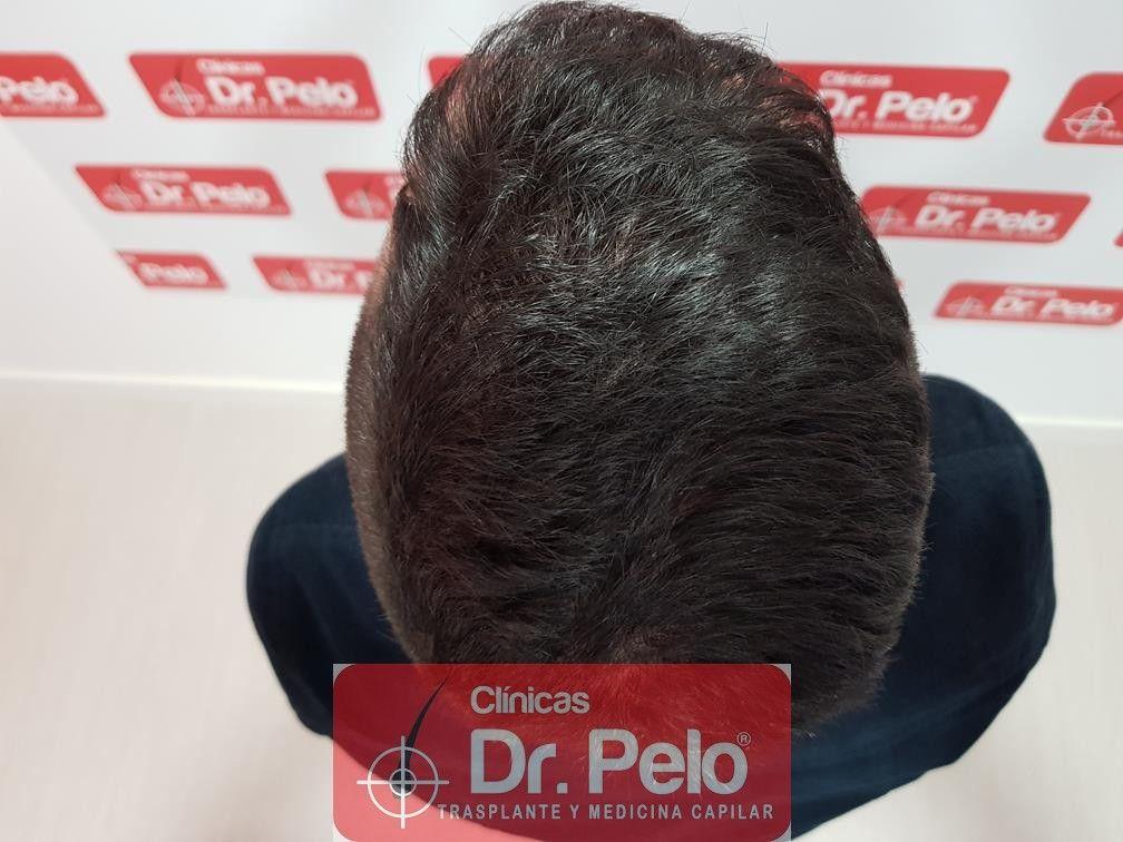 [Imagen: tratamiento-capilar-fue-en-dr-pelo-17.jpg]