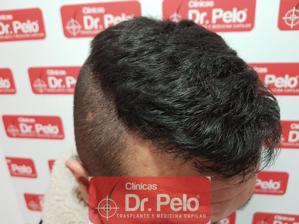 [Imagen: tratamiento-capilar-fue-en-dr-pelo-18.jpg]