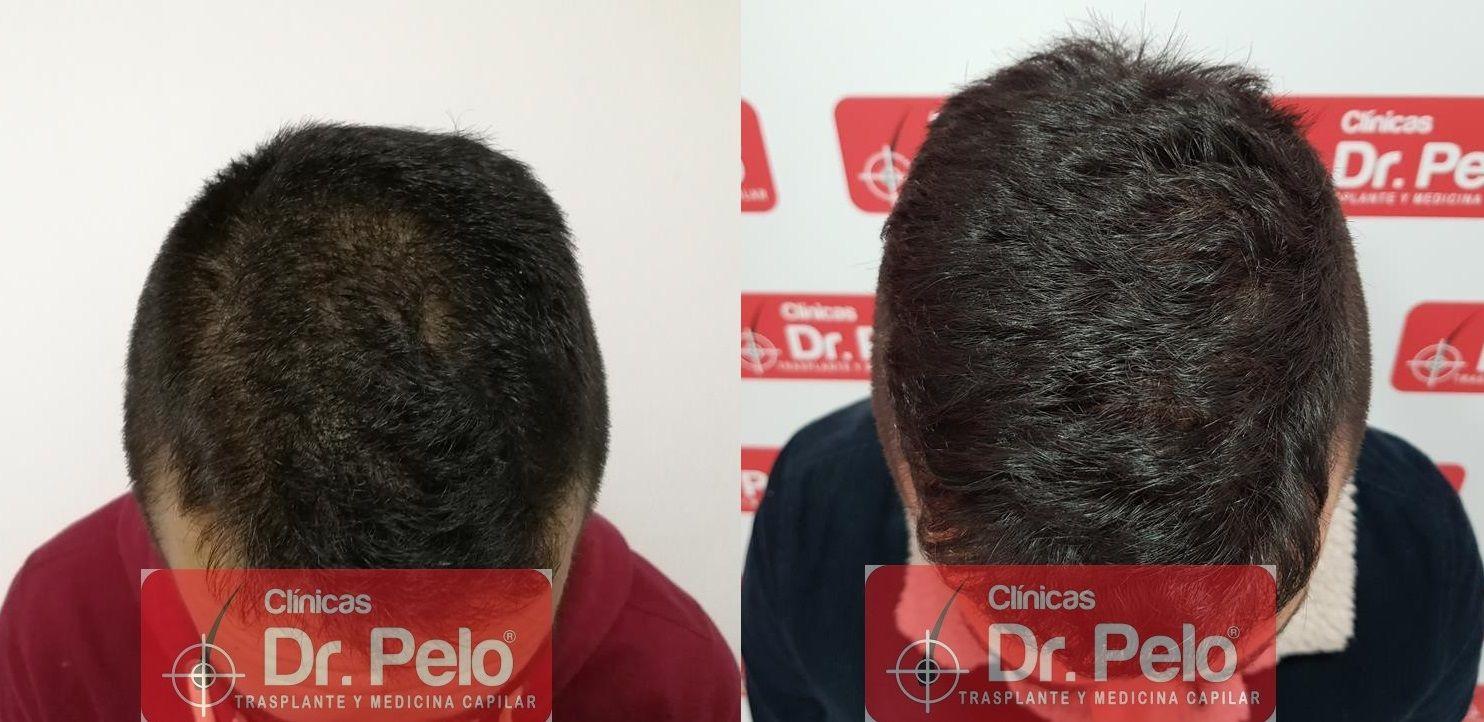 [Imagen: tratamiento-capilar-fue-en-dr-pelo-20-1.jpg]