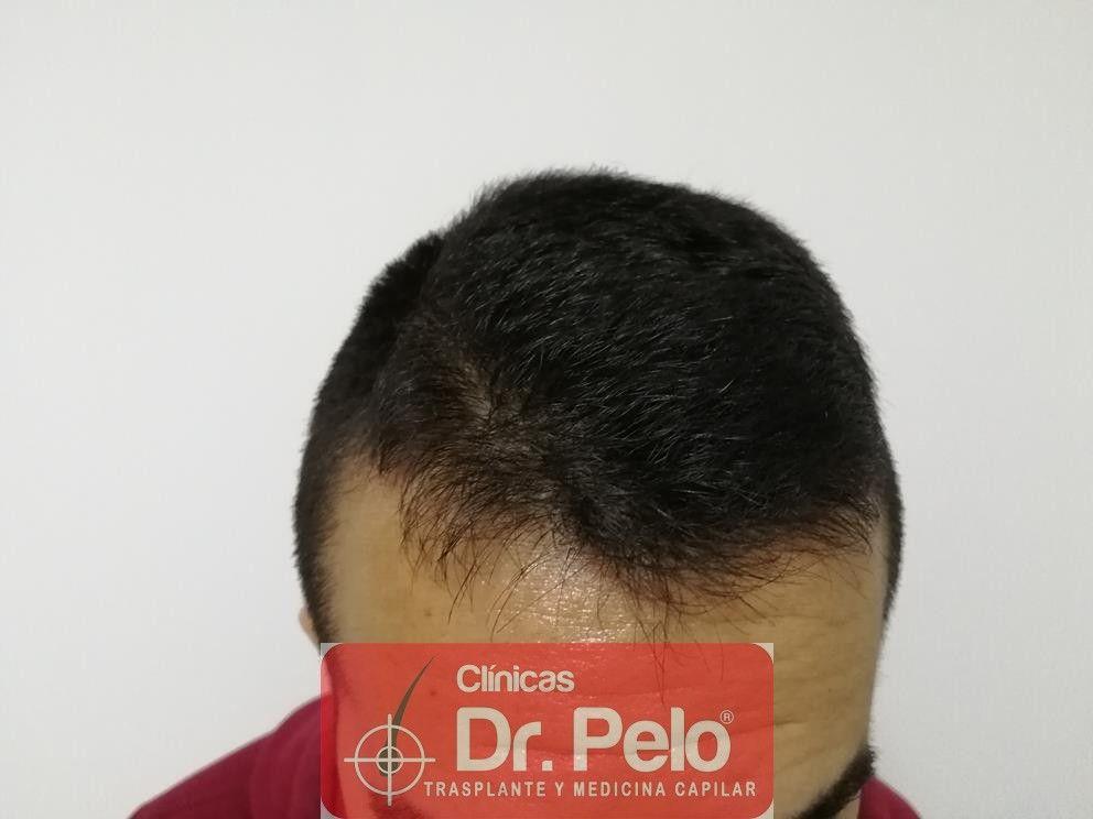 [Imagen: tratamiento-capilar-fue-en-dr-pelo-6-1.jpg]