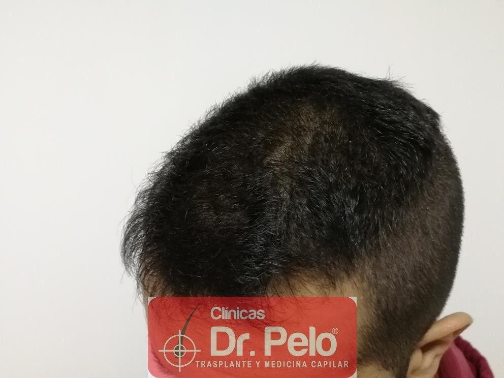 [Imagen: tratamiento-capilar-fue-en-dr-pelo-8-1.jpg]