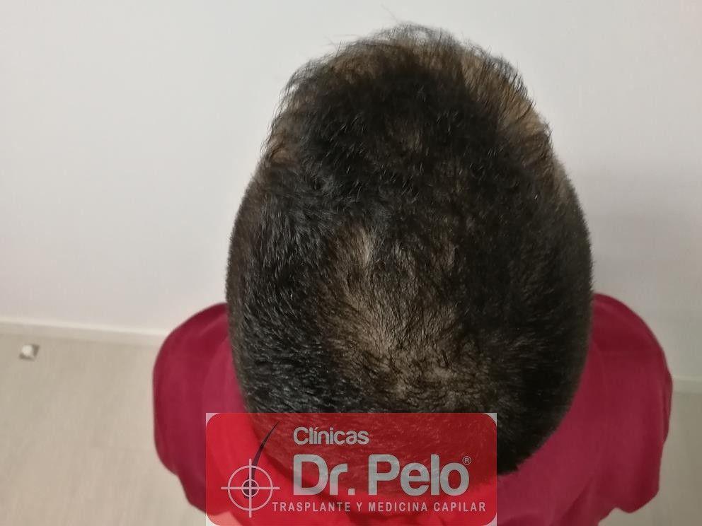 [Imagen: tratamiento-capilar-fue-en-dr-pelo-9-1.jpg]