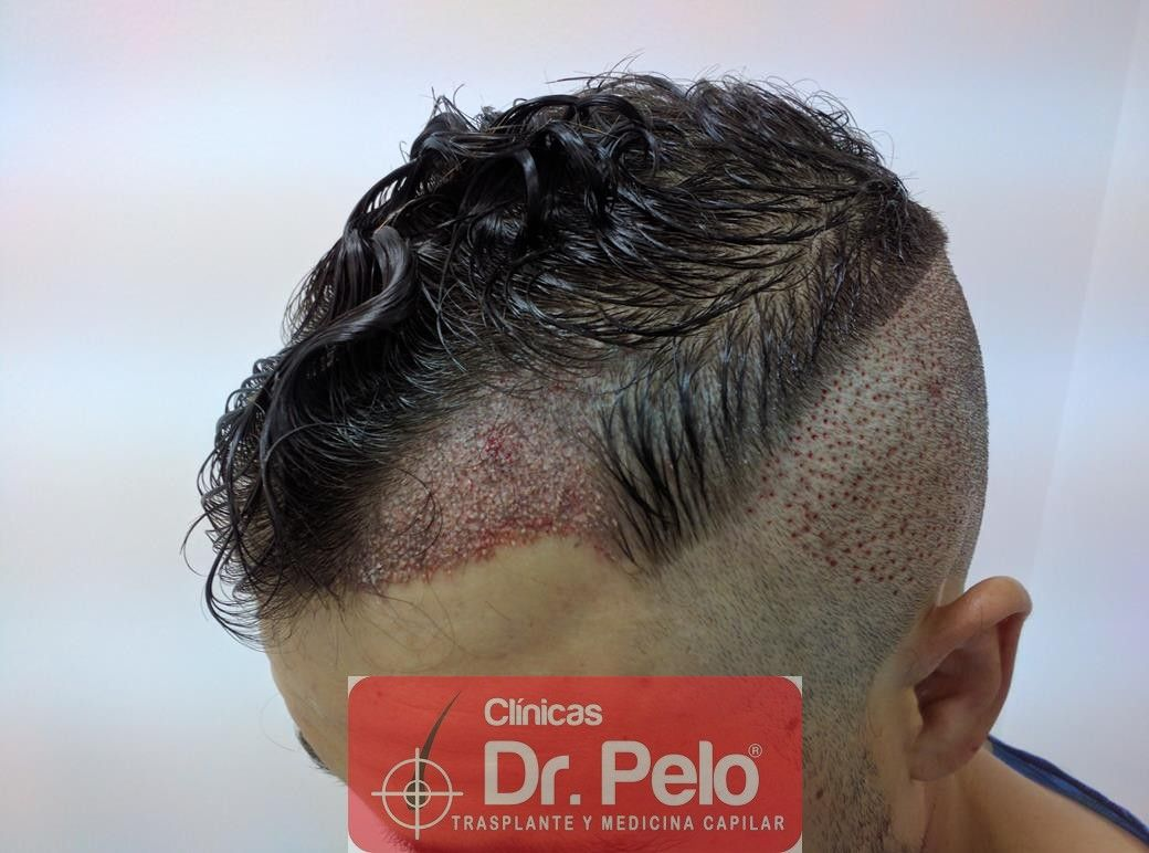 [Imagen: injerto-capilar-fue-dr-pelo-12.jpg]