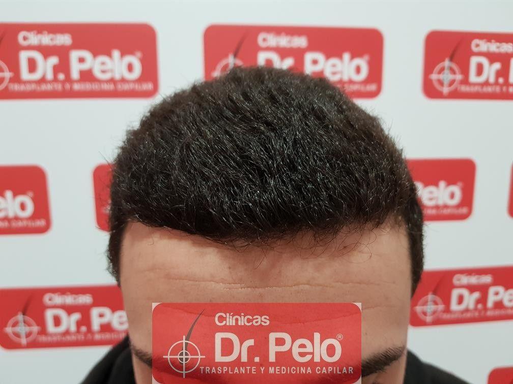 [Imagen: injerto-capilar-fue-dr-pelo-17.jpg]