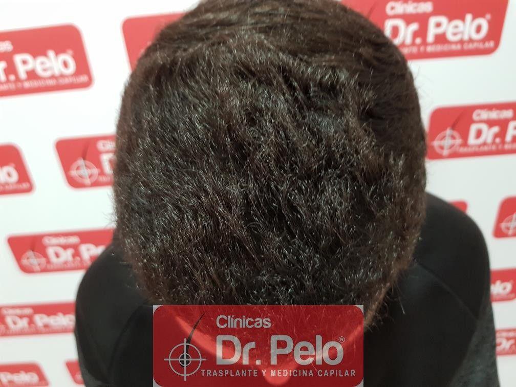 [Imagen: injerto-capilar-fue-dr-pelo-18.jpg]
