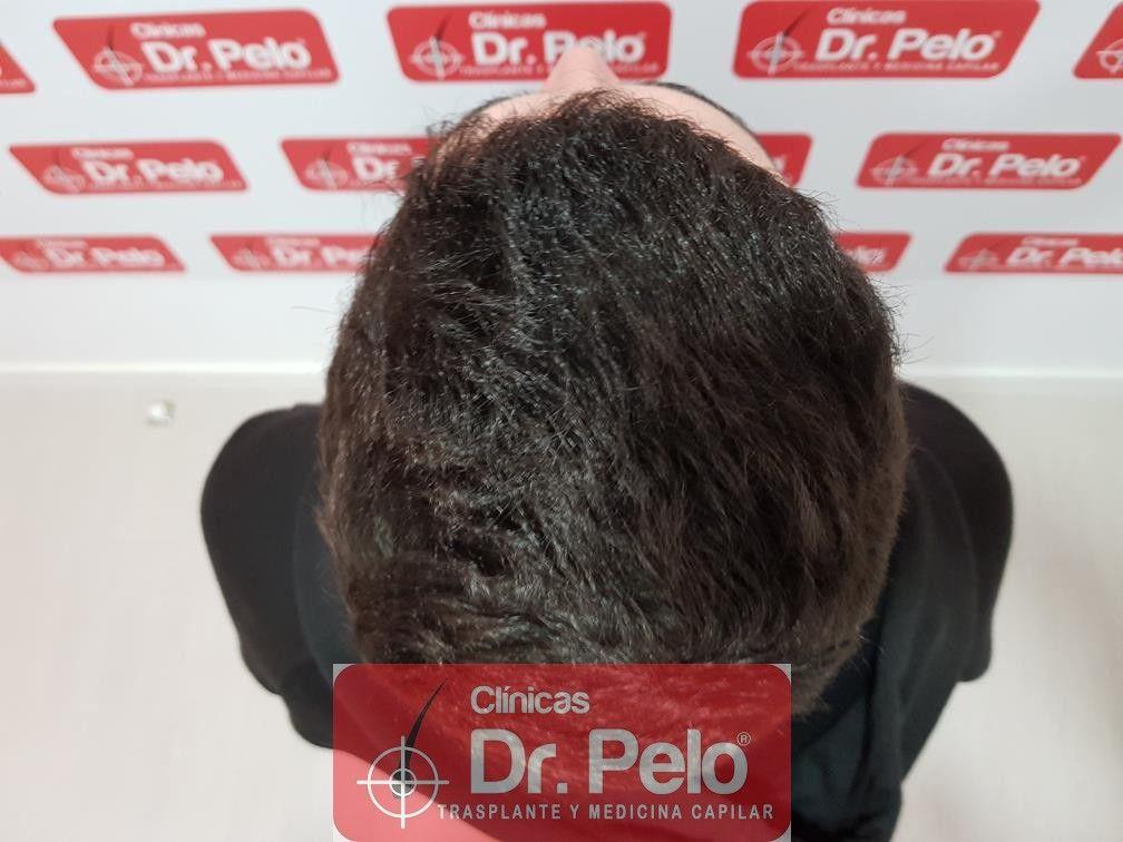 [Imagen: injerto-capilar-fue-dr-pelo-21.jpg]
