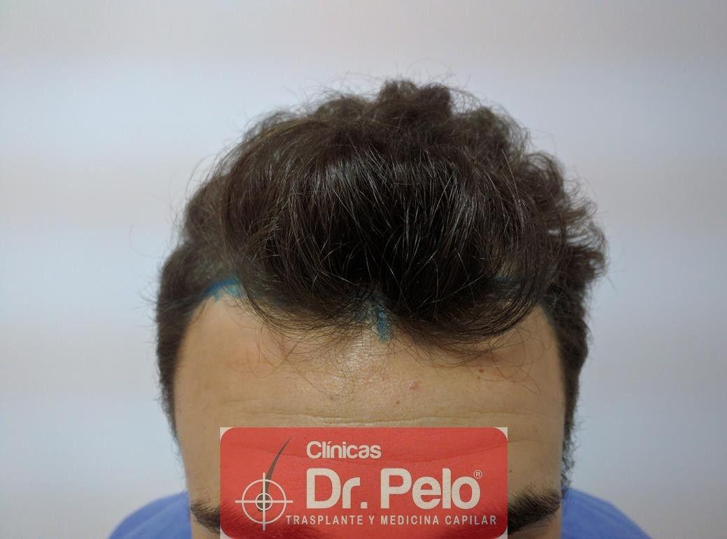 [Imagen: injerto-capilar-fue-dr-pelo-3.jpg]