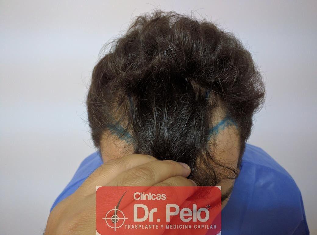 [Imagen: injerto-capilar-fue-dr-pelo-4.jpg]
