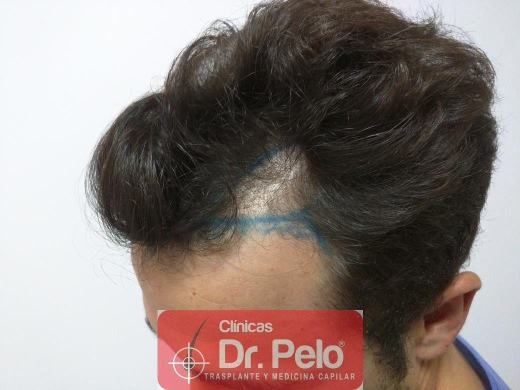 [Imagen: injerto-capilar-fue-dr-pelo-6.jpg]
