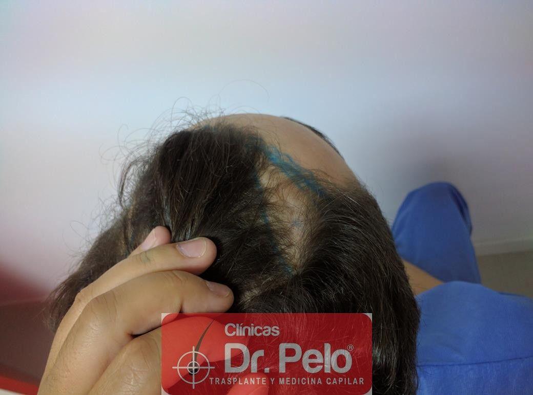 [Imagen: injerto-capilar-fue-dr-pelo-8.jpg]