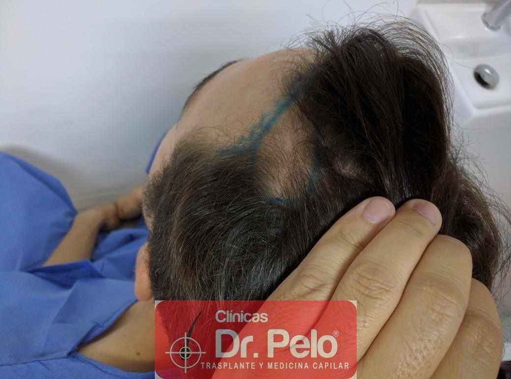 [Imagen: injerto-capilar-fue-dr-pelo-9.jpg]