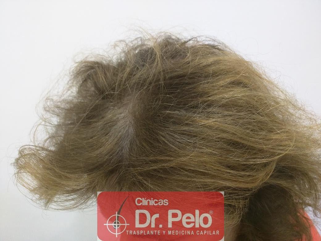 [Imagen: tratamiento-capilar-dr-pelo-23.jpg]