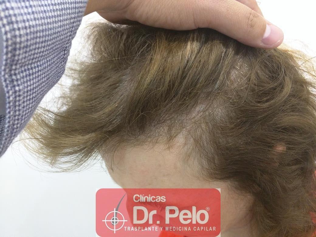 [Imagen: tratamiento-capilar-dr-pelo-24.jpg]