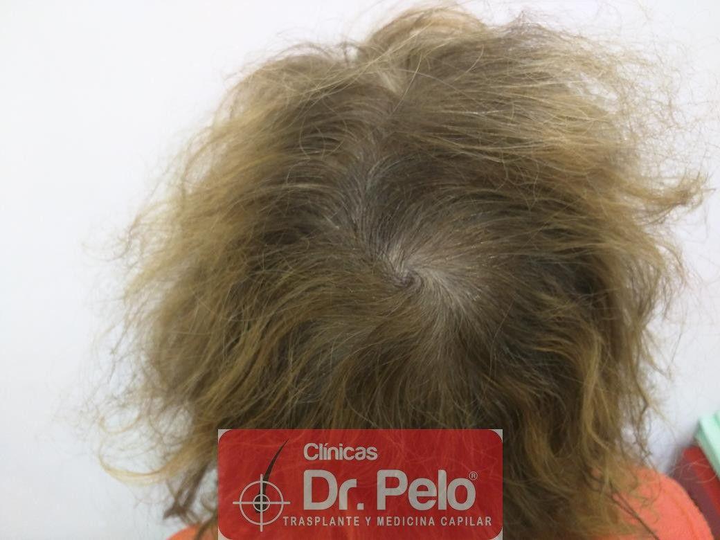 [Imagen: tratamiento-capilar-dr-pelo-25.jpg]
