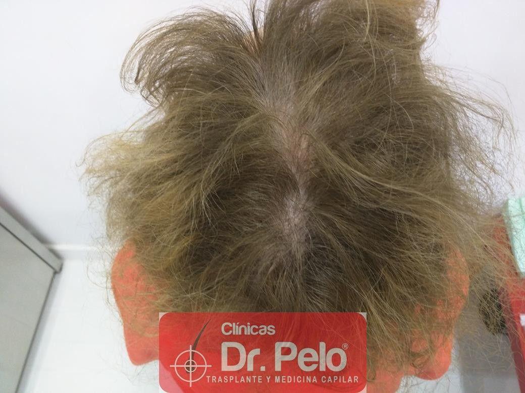 [Imagen: tratamiento-capilar-dr-pelo-27.jpg]