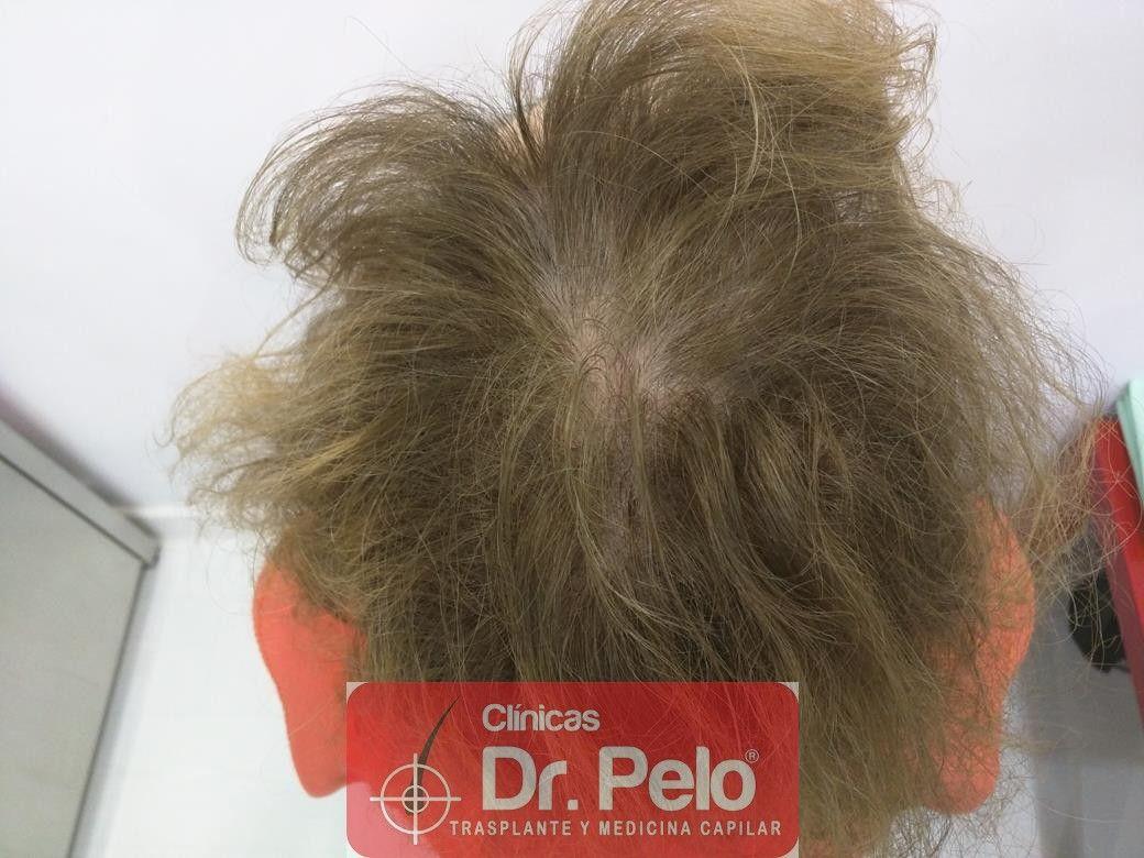 [Imagen: tratamiento-capilar-dr-pelo-28.jpg]