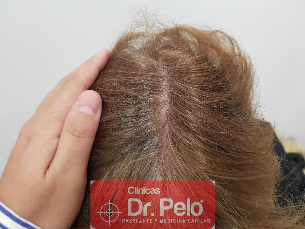 [Imagen: tratamiento-capilar-dr-pelo-32.jpg]