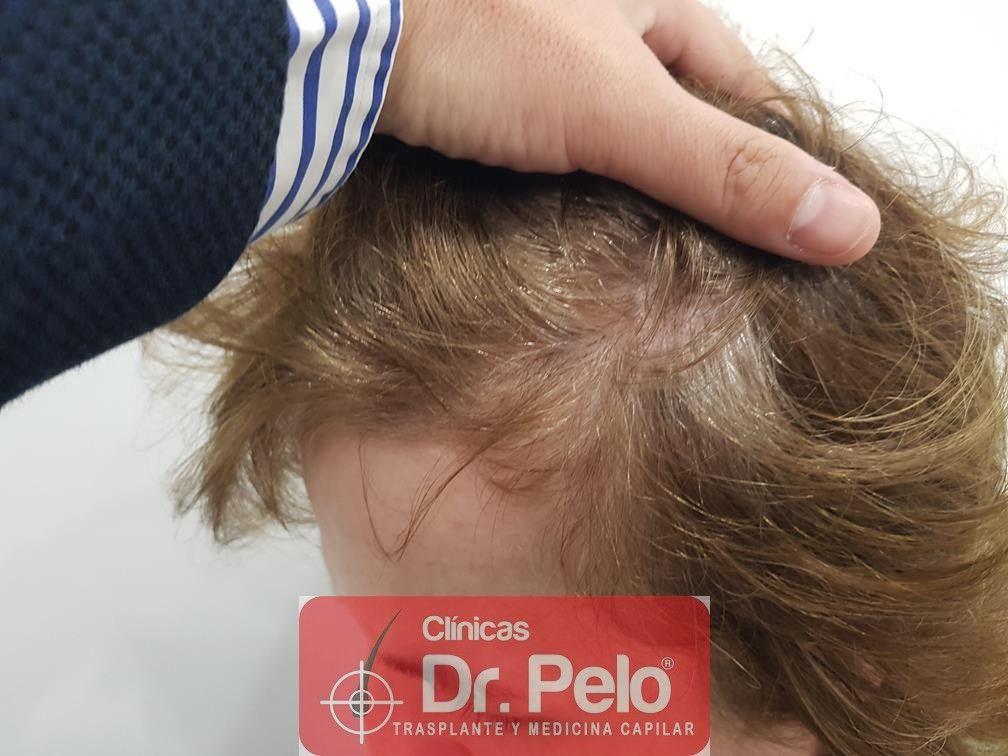 [Imagen: tratamiento-capilar-dr-pelo-35.jpg]