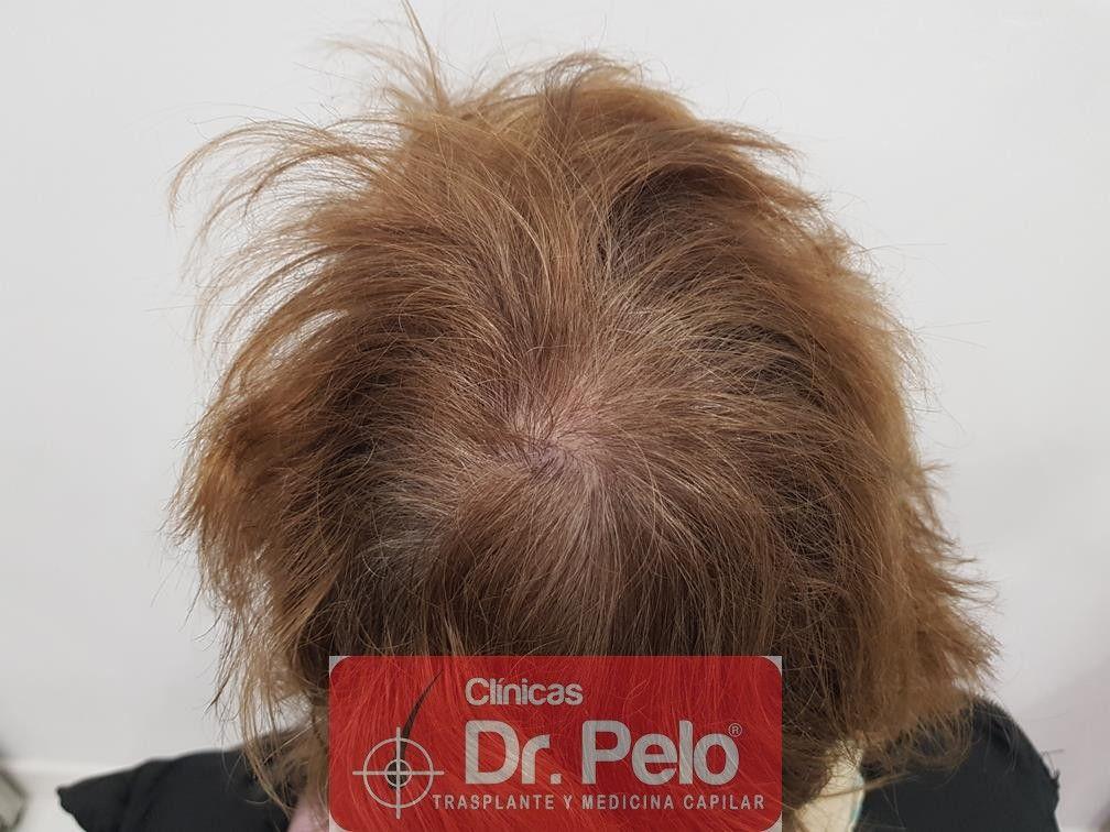 [Imagen: tratamiento-capilar-dr-pelo-36.jpg]