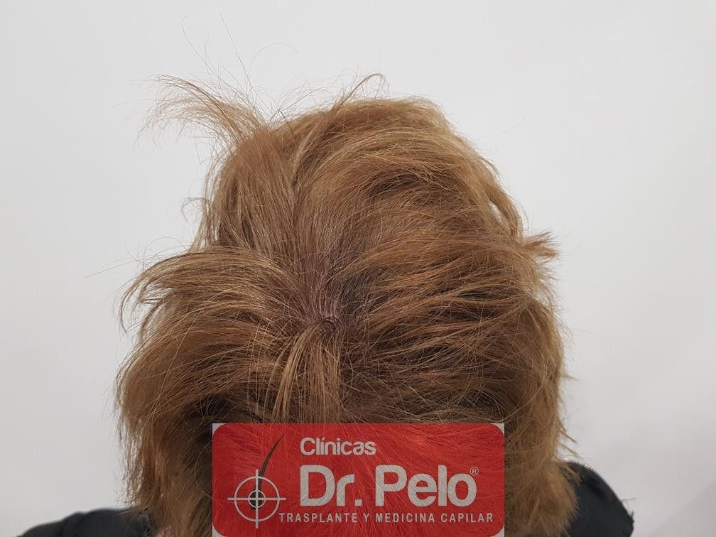 [Imagen: tratamiento-capilar-dr-pelo-37.jpg]