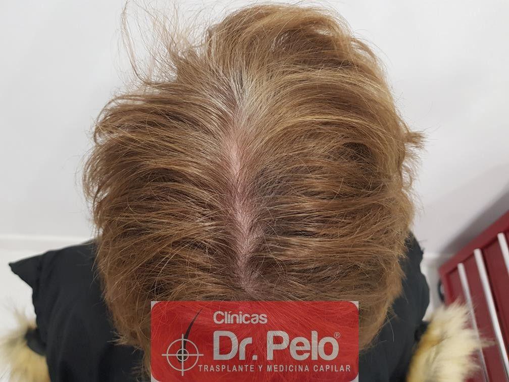 [Imagen: tratamiento-capilar-dr-pelo-38.jpg]