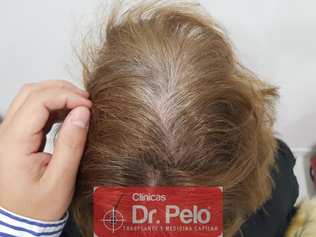[Imagen: tratamiento-capilar-dr-pelo-39.jpg]