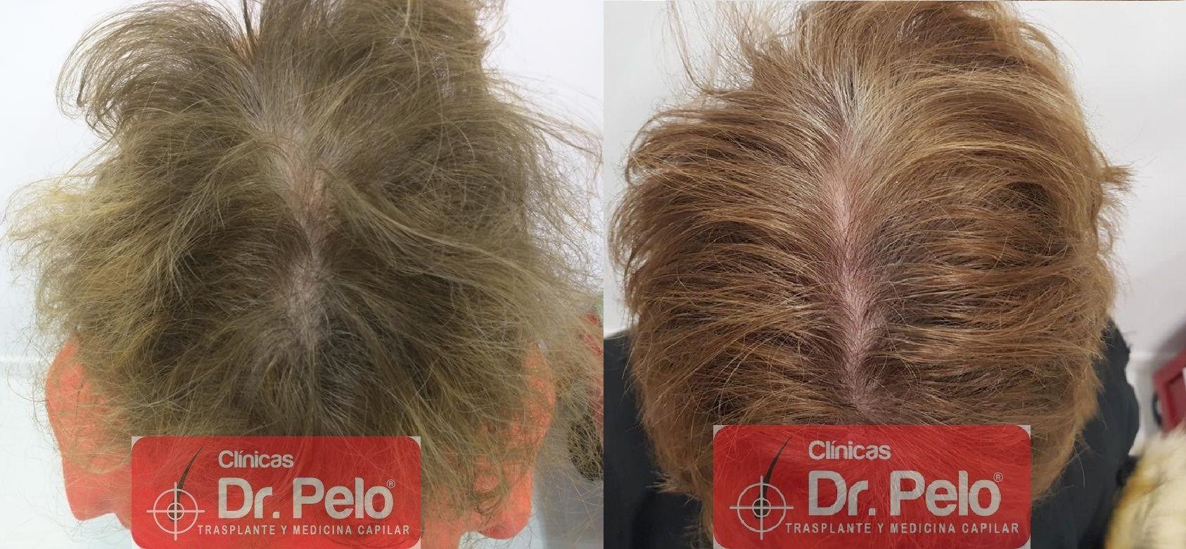 [Imagen: tratamiento-capilar-dr-pelo-42.jpg]