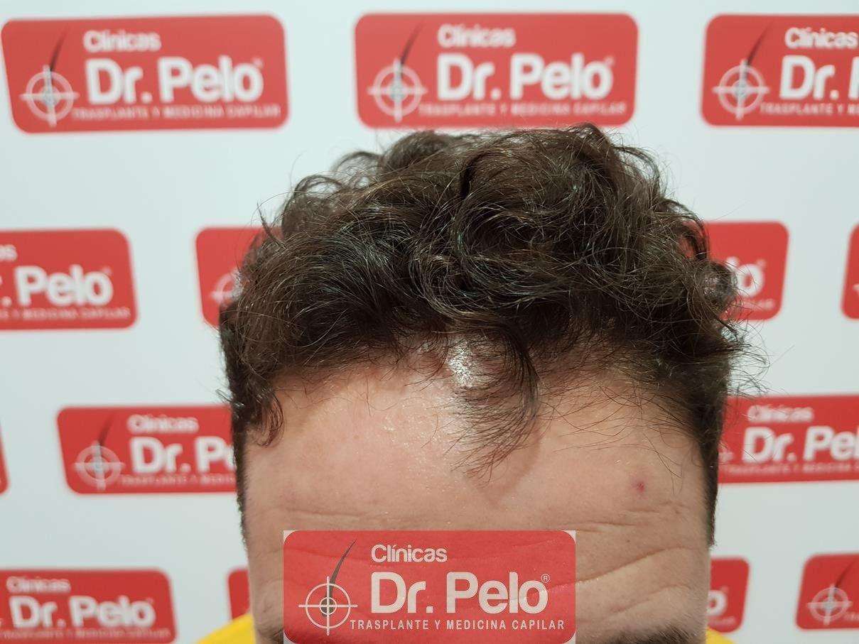 [Imagen: tratamiento-capilar-fue-dr-pelo-10-1.jpg]