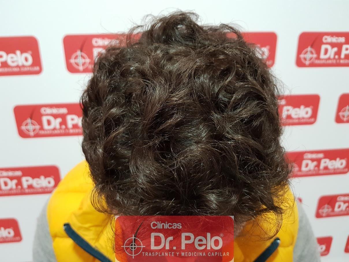 [Imagen: tratamiento-capilar-fue-dr-pelo-11-1.jpg]