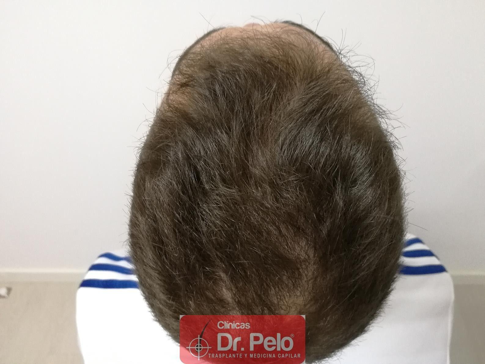 [Imagen: tratamiento-capilar-fue-dr-pelo-11.jpg]