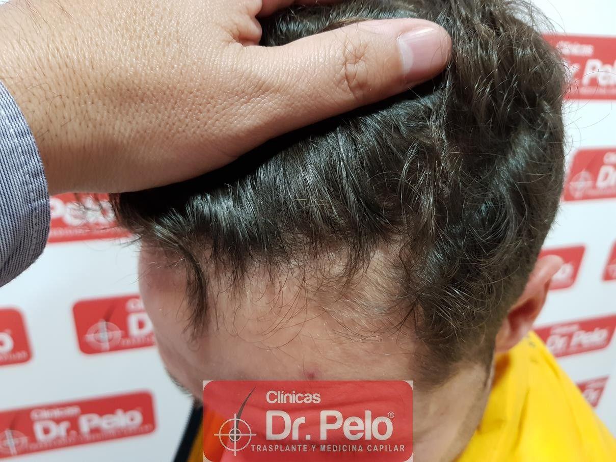 [Imagen: tratamiento-capilar-fue-dr-pelo-13-1.jpg]