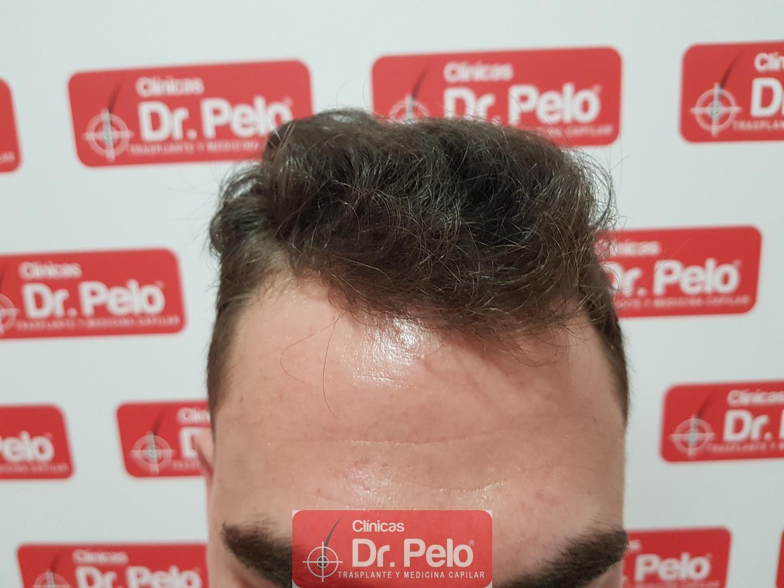 [Imagen: tratamiento-capilar-fue-dr-pelo-13.jpg]