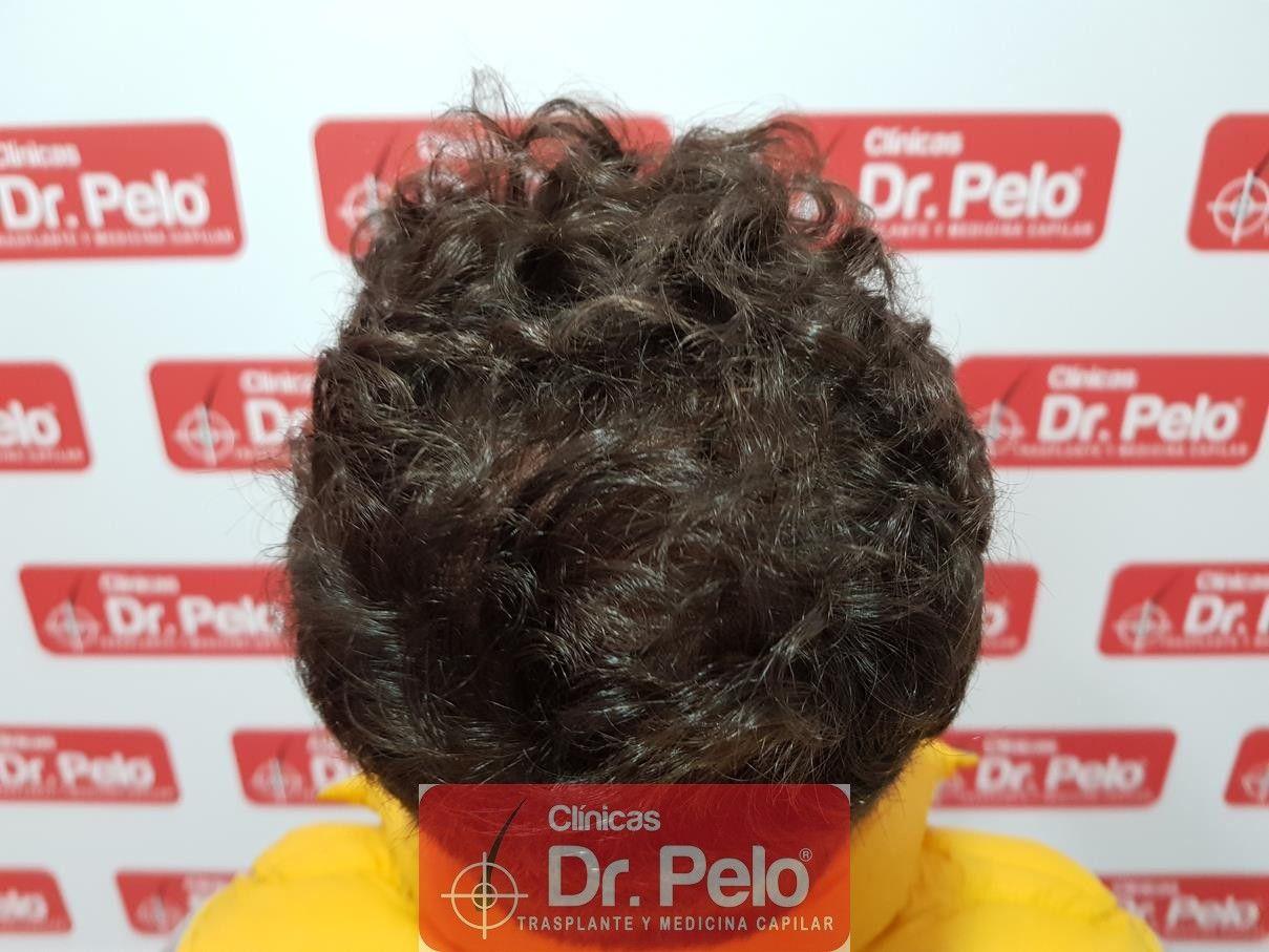 [Imagen: tratamiento-capilar-fue-dr-pelo-14-1.jpg]