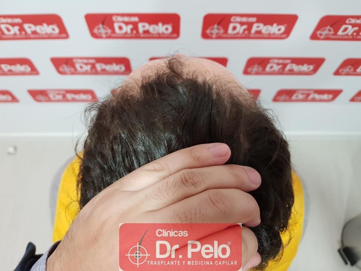 [Imagen: tratamiento-capilar-fue-dr-pelo-15-1.jpg]