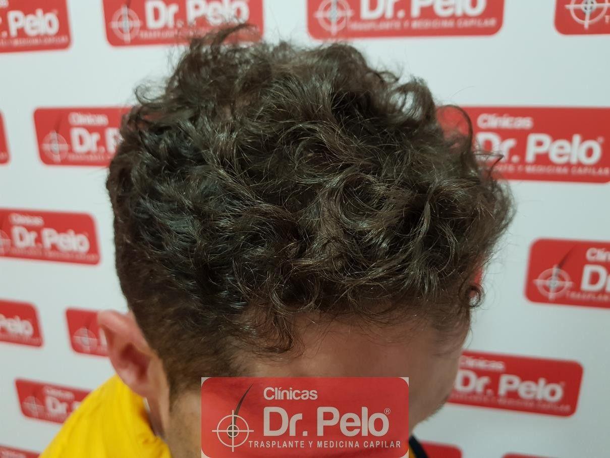 [Imagen: tratamiento-capilar-fue-dr-pelo-17-1.jpg]