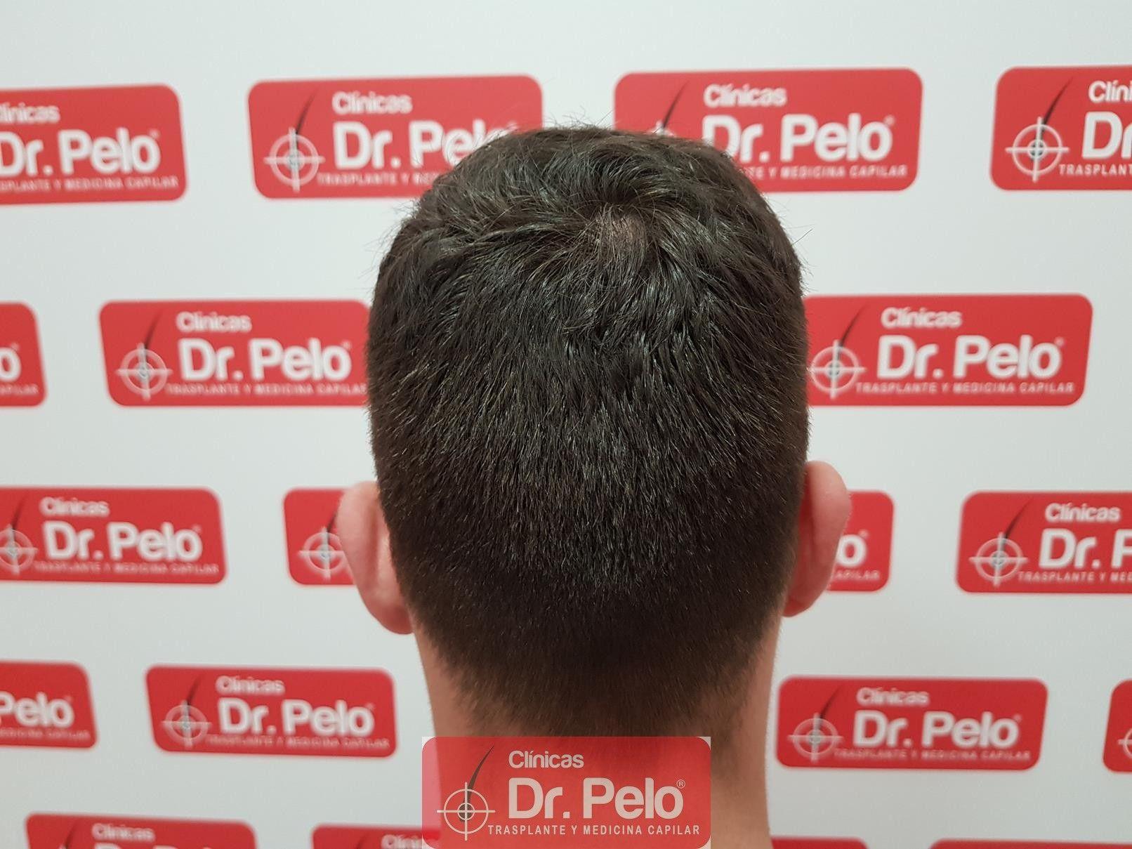 [Imagen: tratamiento-capilar-fue-dr-pelo-17.jpg]